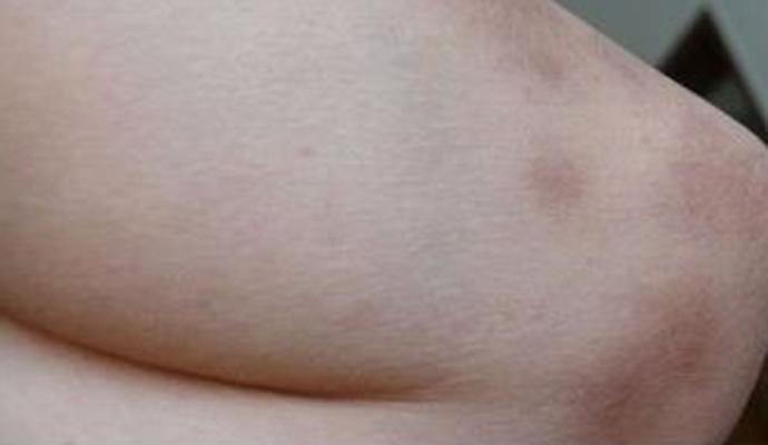 出汗对牛皮癣患者有危害吗